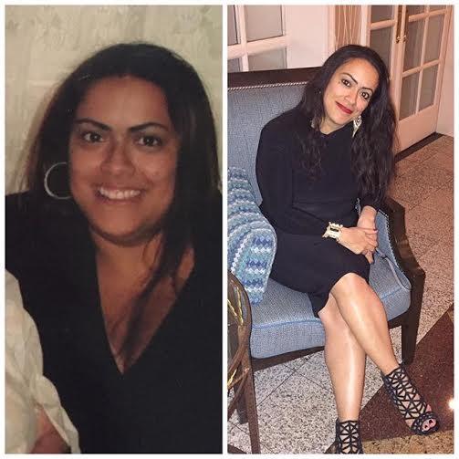 maritza b4 & after